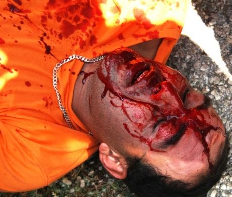 Imad Rizka critically injured during the weekly Bil'in protest on Friday – photo by Hamdi Abu Rahmah www.bilin-ffj.org